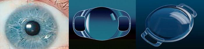 Opération des Fortes Myopies - Techniques des Implants intra-oculaires 3ffc063f9939