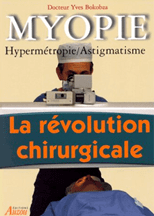 chirurgien ophtalmologue, operation myopie
